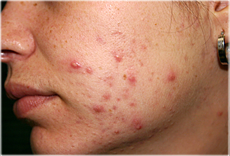 hormonale acne